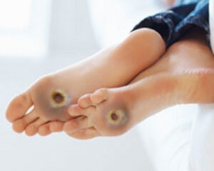 DIABETIC FOOT: THE SITUATION IS NOT HOPELESS!