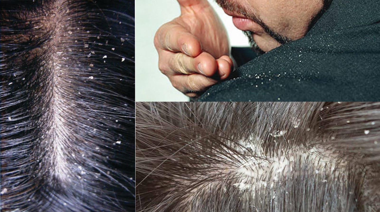 Scalp fungus. Scientists have found new ways to treat
